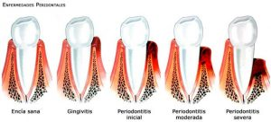 periodon01