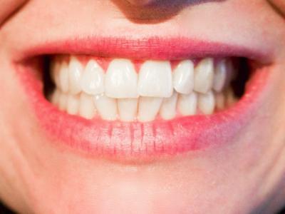 La dentadura afecta a la postura y el equilibrio